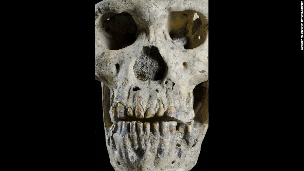 This skull, known as Skull 5, was matched to a jaw -- pictured here -- that was found several years earlier.