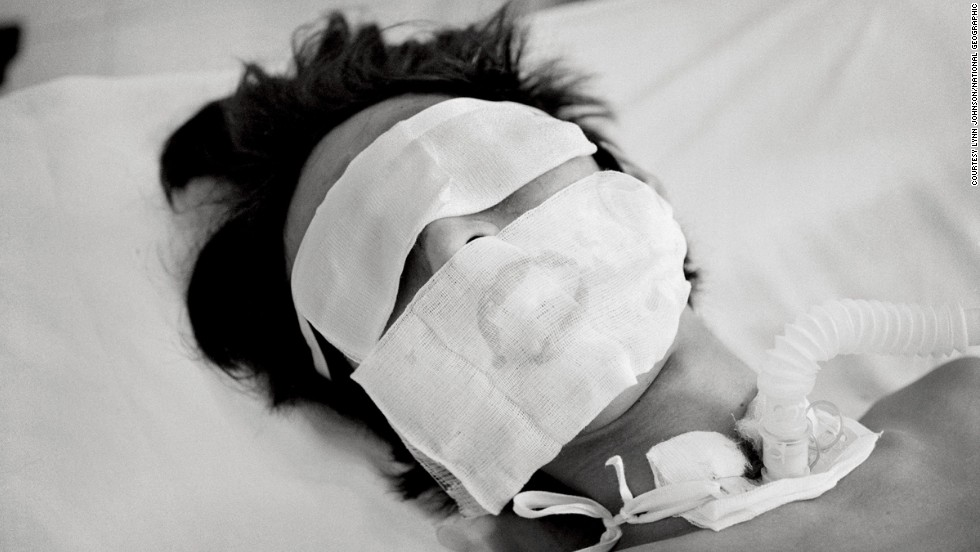 Comatose and on a ventilator, a bird flu patient in Hanoi who was not expected to live made a remarkable recovery, in this haunting photograph by Lynn Johnson.