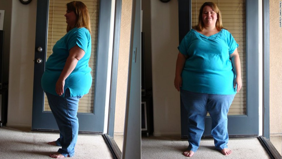 Shack's wife, Amy, carried 322 pounds on her 5-foot-1 frame before getting gastric bypass surgery in summer 2009.