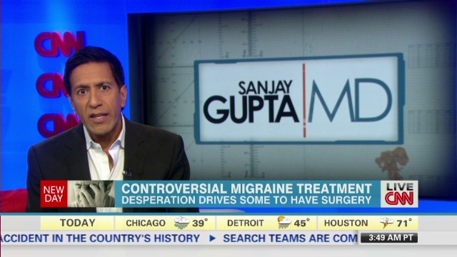 Controversial migraine treatment