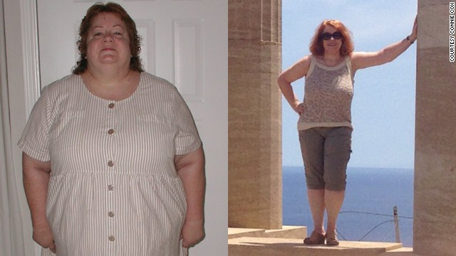 Connie Cox lost more than 130 pounds after having gastric bypass surgery 10 years ago.