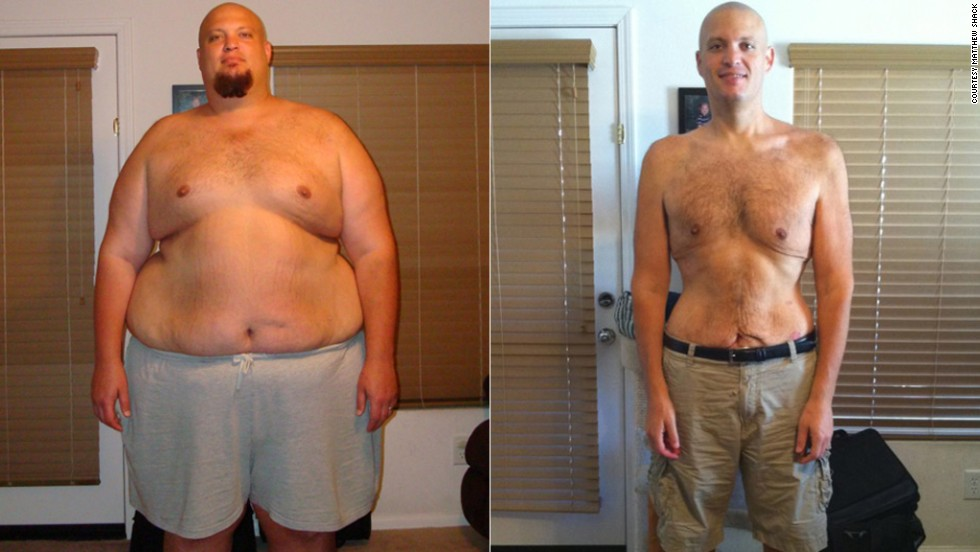 "Matthew Shack dropped 265 pounds with ease -- moving more and eating less. But <a href=""http://www.cnn.com/2013/11/04/health/weight-loss-matthew-shack/index.html"">keeping the weight off</a> has proven more difficult."