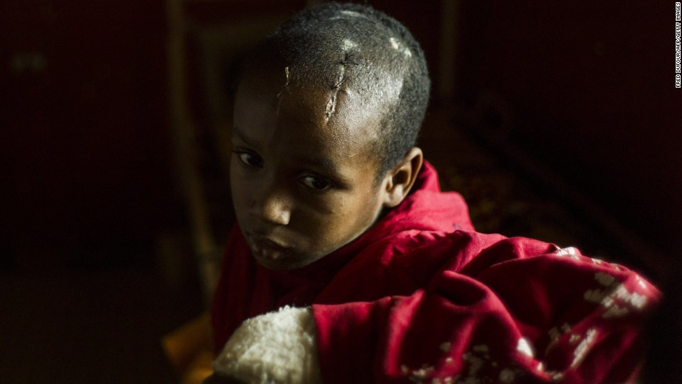 A boy scarred from a machete attack waits at a pediatric hospital in Bangui on Wednesday, December 18.