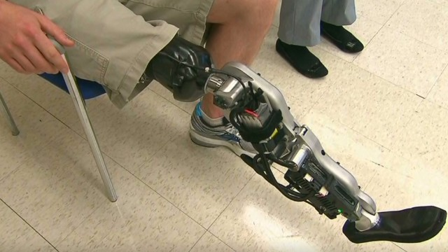 This bionic leg can read minds