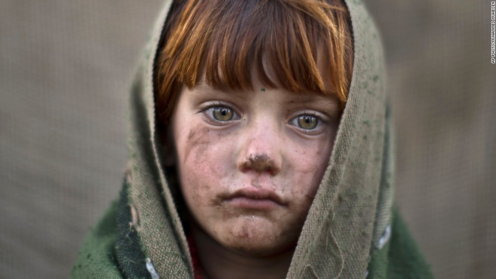 laiba Hazrat, 6 -- The award-winning photographer captured the toll the conflict had on very young Afghan refugees.