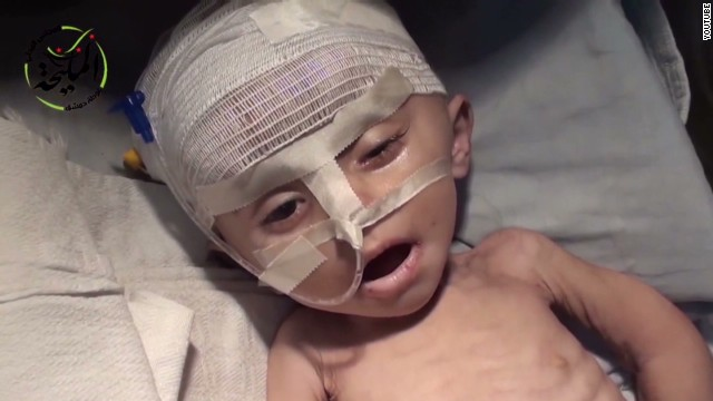 Malnourished children dying in Syria