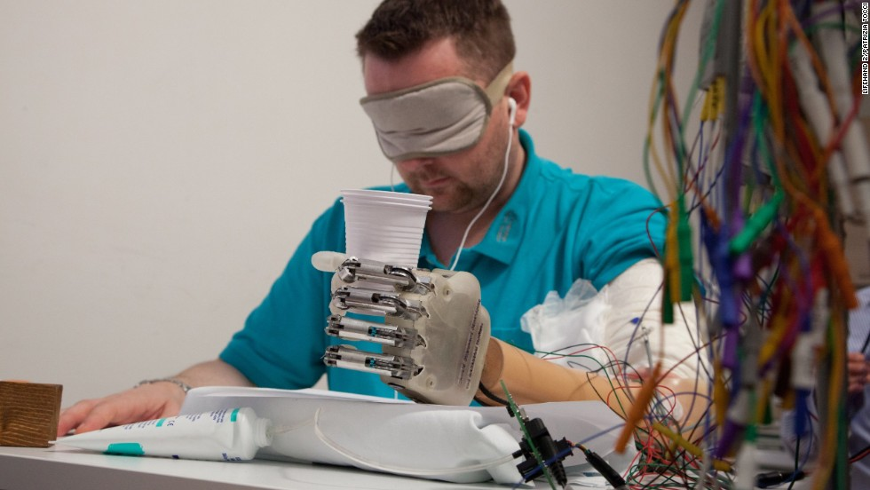 Dennis Aabo Sorensen wears an artificial hand enabled for sensory feedback. He is the first amputee to be able to feel objects with a special prosthetic device that communicates with his nervous system through electrodes in his arm.