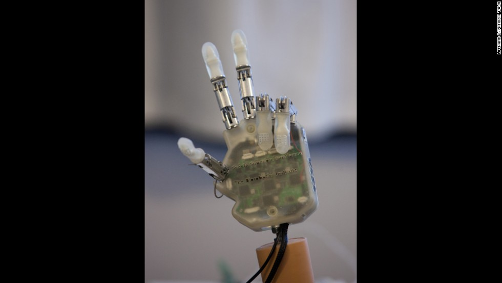 Sensors in the tendons of the artificial hand detect information about touch.