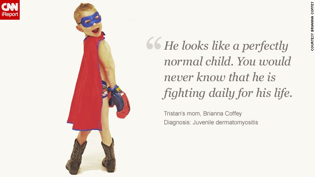 Children face rare diseases with bravery