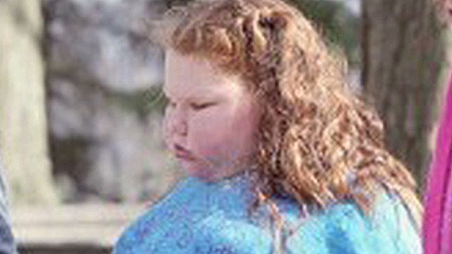 12-year-old gets gastric bypass surgery