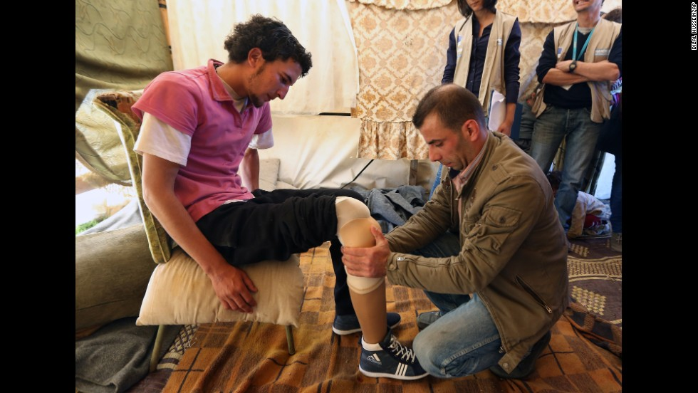 Mustafa Ahmad, who lost his leg in 2011 when government warplanes bombed his neighborhood in Syria, is fitted with a prosthetic leg at a refugee camp Thursday, March 27, in Jib Janine, Lebanon.