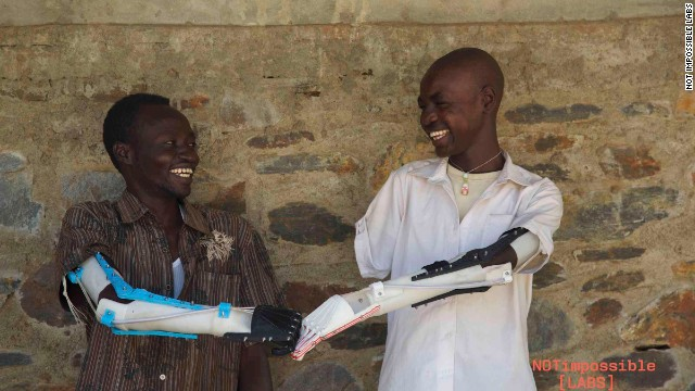Daniel Omar and a friend compare prostheses