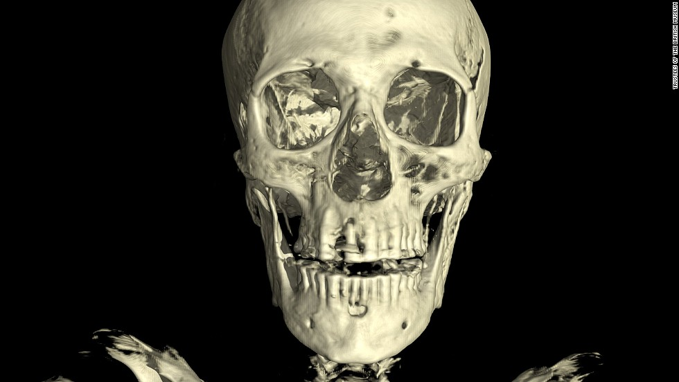 The scan of the unknown man revealed evidence of dental abbesses and the loss of several teeth, which would have meant he likely was in severe pain in the lead up to his death.