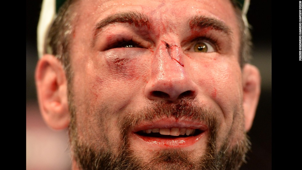 Isaac Vallie-Flagg reacts after the conclusion of his bout against Takanori Gomi during UFC 172, which took place Saturday, April 26, in Baltimore. Gomi won by unanimous decision.