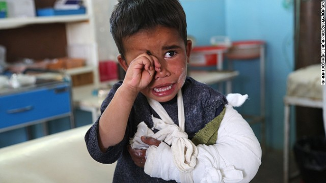 A wounded child cries after receiving treatment at a hospital following an attack in Ghazni province on May 12, 2014.