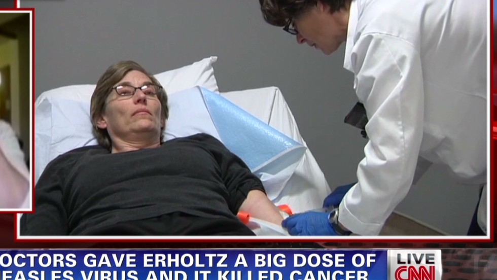 Measles virus used to put woman's cancer into remission