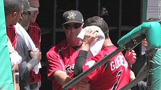 Baseball argument leads to ear biting
