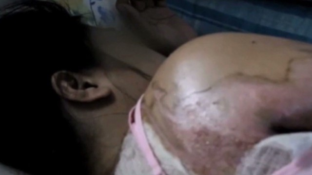 Maid allegedly burned by Saudi employer