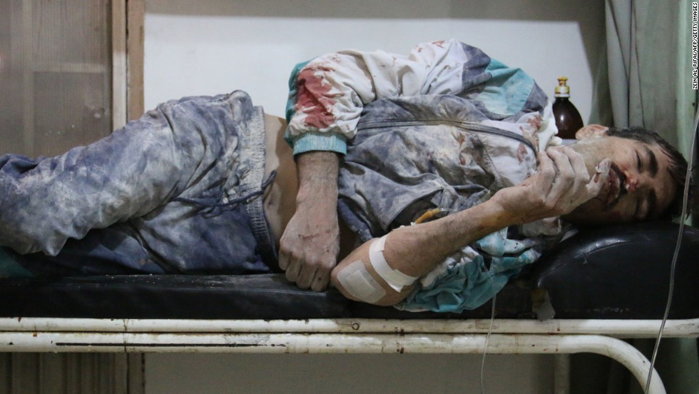 An injured man lies in a hospital bed after alleged airstrikes by government forces in Aleppo on Sunday, May 18.