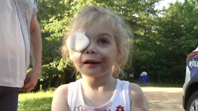 Family alleges mauled girl asked to leave KFC