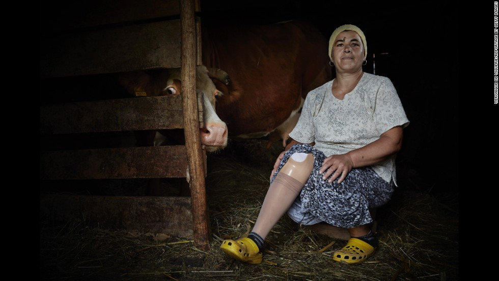 Zilka Durmisevic was injured by a land mine in 1999 while she was cleaning her parents' house in the Bosnian village of Kamenica. Her leg had to be amputated below the knee. Land mines remain a threat in many areas around the world that were once war zones.