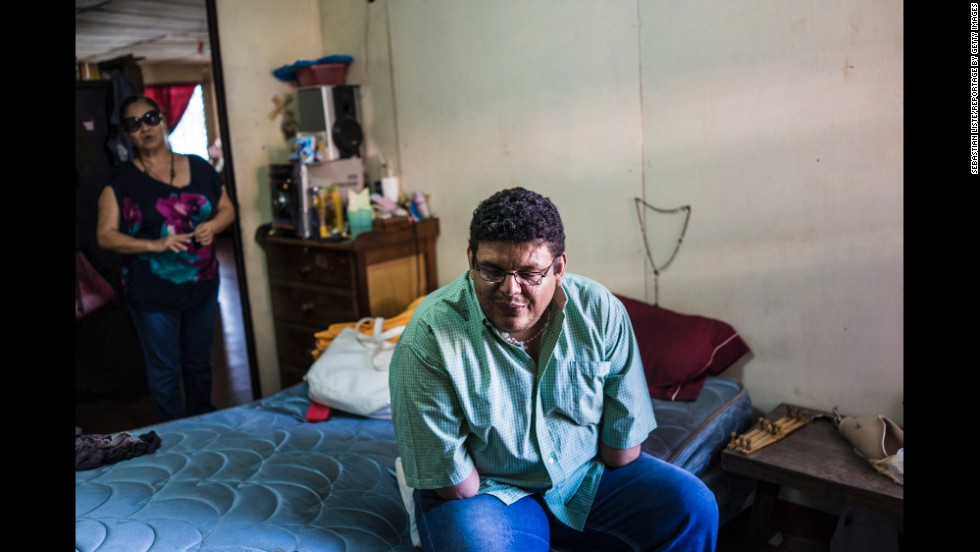 Milton Ivan Olivar Gómez was injured in 1984 by an anti-personnel mine in the Rio Pire near Condega, Nicaragua. He lost both his hands and had damage to his eyes and ears. Since the accident, he has studied and worked in a printing office and as a radio journalist.