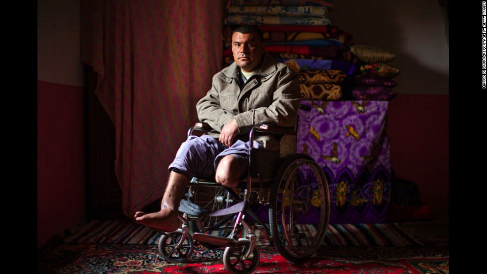 Bassim Miftin was working as a shepherd in 2004 when he stepped on a land mine in the Iraqi village of Zorbatya. He lost his left leg above the knee and injured his right foot.