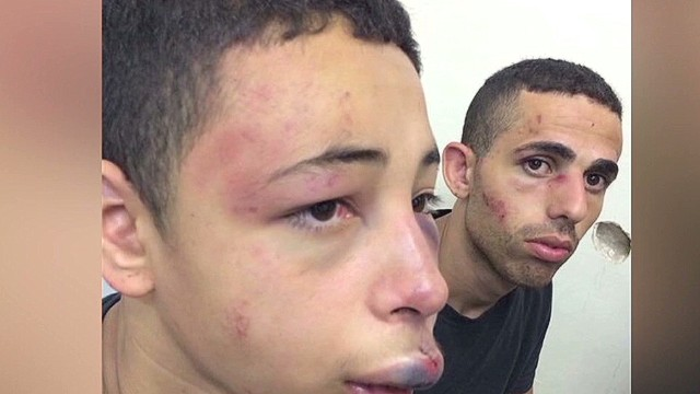 American teen beaten by Israeli police