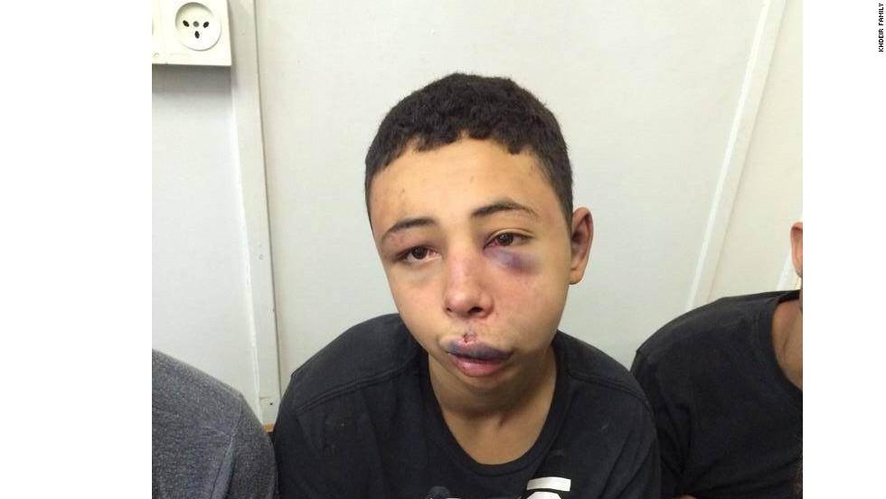 Israel suspends police officer over beating of U.S. teen in Jerusalem