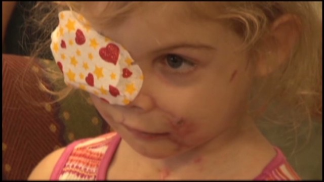 Girl in KFC incident to get prosthetic eye