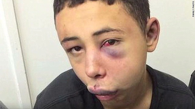 Amateur video shows U.S. teen's beating