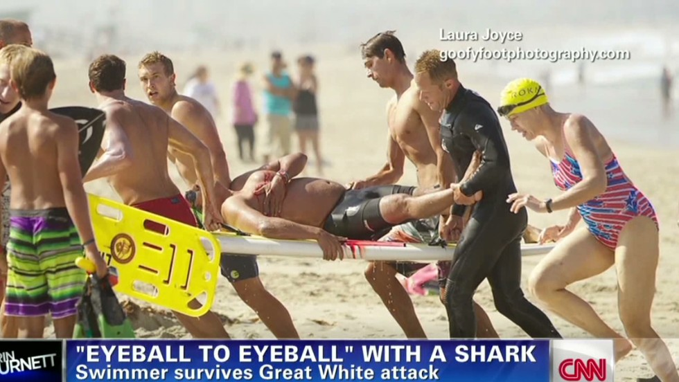 Shark Attacks Injure 2 at Florida Beach