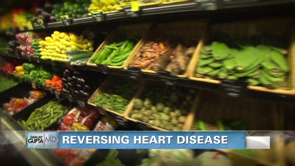 Nearly half of Americans have heart disease