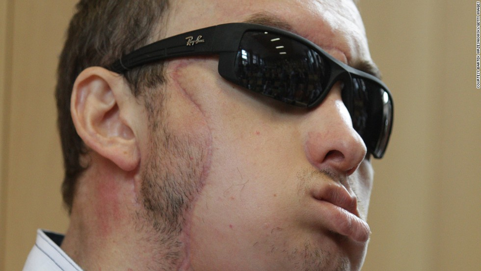 A 33-year-old Polish man identified only as Grzegorz received the country's first face transplant in May 2013, after being disfigured by a machine at a stonemason's workshop. Polish doctors described it as the world's first life-saving face transplant.