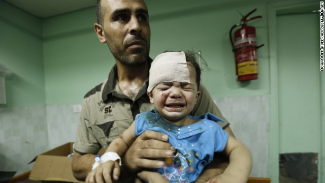 A Palestinian child, wounded in an Israeli strike on a compound housing a U.N. school in Jabalia refugee camp, Gaza, receives treatment at Kamal Adwan hospital in Beit Lahia on July 30, 2014.