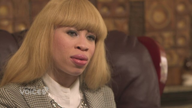From albino model to talk show host