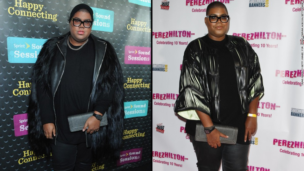 """#RichKids of Beverly Hills"" star E.J. Johnson lost 50 pounds in five weeks after undergoing gastric sleeve surgery.<a href=""http://www.people.com/article/e-j-johnson-undergoes-weight-loss-surgery"" target=""_blank""> In September, he told People</a> he is not setting a specific number in terms of his goal for weight loss."