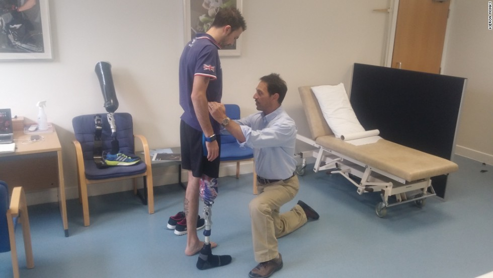 Lewis working with prosthetists at Pace Rehabilitation in London.