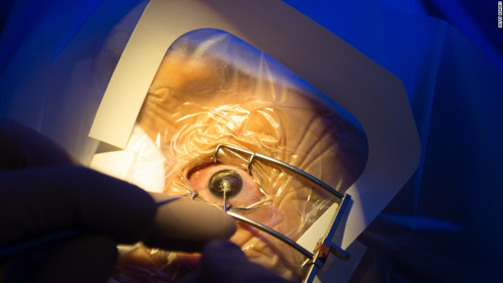 Close up of the procedure at the LASIK Surgery Clinic (LSC) in Singapore.