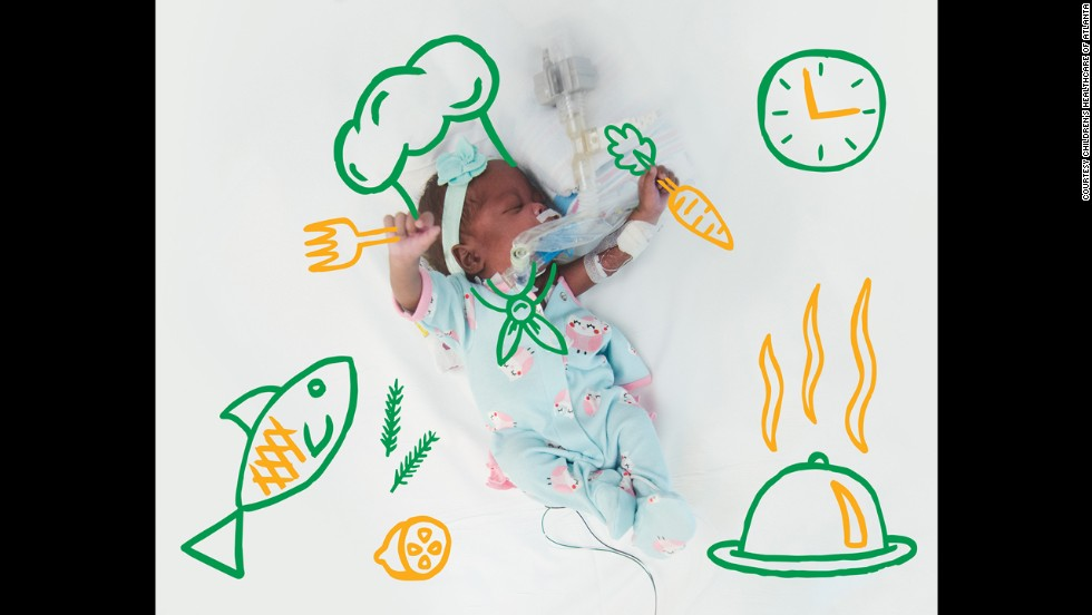 All of the babies pictured, including this top chef, were born between 25 and 37 weeks of gestation.
