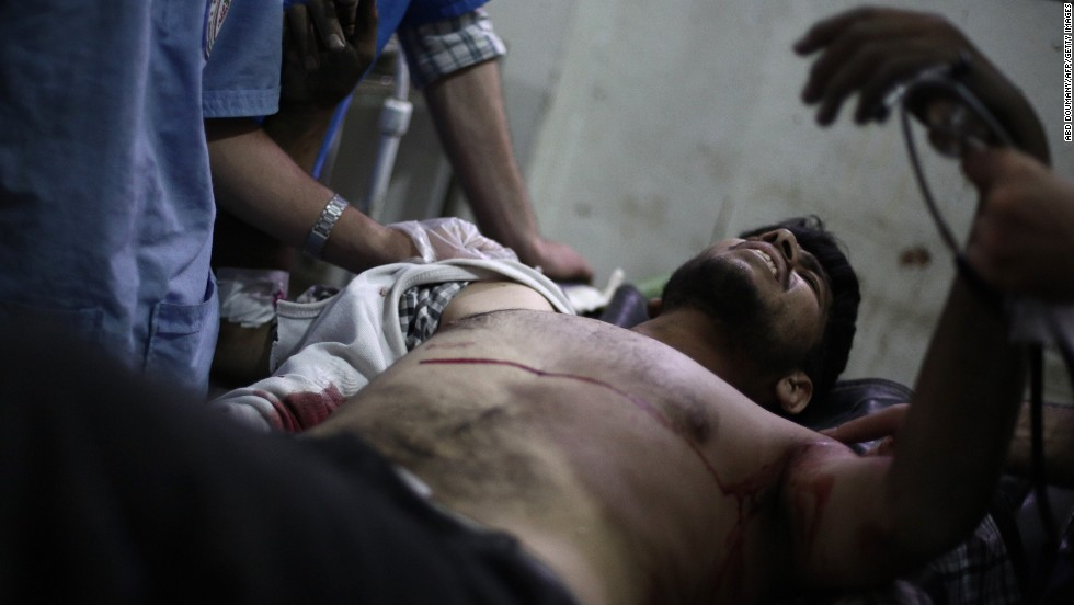 A Syrian rebel fighter lies on a stretcher at a makeshift hospital in Douma, Syria, on Wednesday, July 9. He was reportedly injured while fighting ISIS militants.