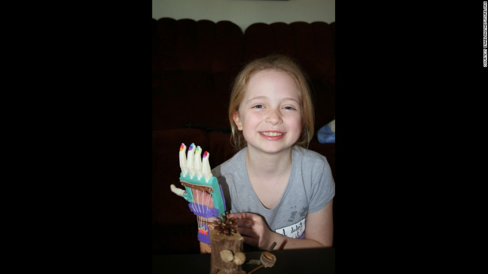 "<a href=""http://www.jsonline.com/news/health/online-community-lends-a-hand-to-build-prosthesis-for-mukwonago-girl-b99205013z1-248250401.html"" target=""_blank"">Shea Stollenwerk, </a>one of the first recipients of the e-NABLE designed hands, collaborated on hand prototypes with a design class at the University of Wisconsin. She has so many hands they made her a ""handbag"" with which to carry them."