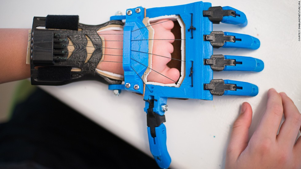 "The Talon hand is a <a href=""http://blog.solidoodle.com/2014/03/father-and-son-make-prosthetic-device-with-their-solidoodle/"" target=""_blank"">popular model designed</a> by a teacher, Peter Binkley, for his son, Peregrine Hawthorne. They both design and test devices for the e-NABLE community."
