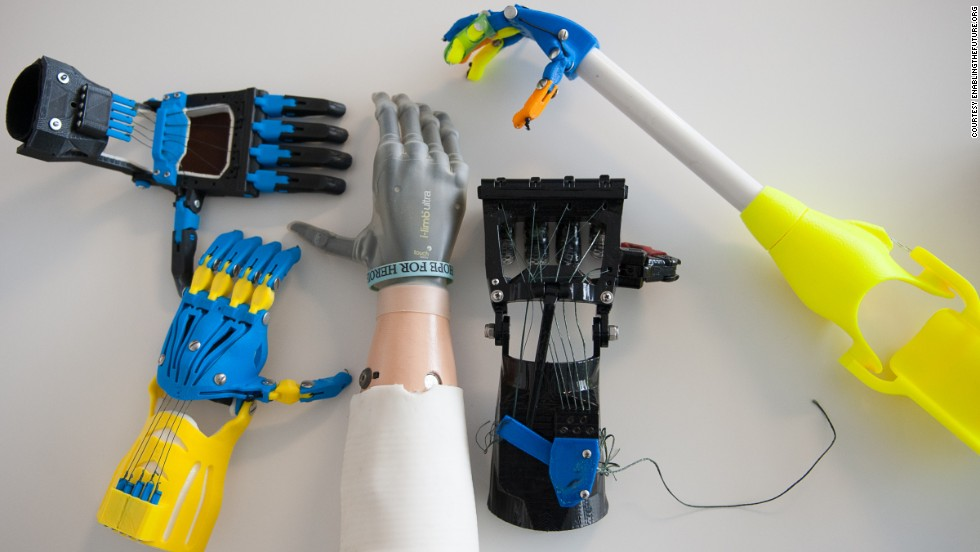 "The gray hand in the middle, an i-limb ultra, is a top-of-the-line electronic prosthetic that can <a href=""http://www.cnn.com/2013/02/01/tech/bionic-hand-ilimb-prosthetic/"">cost $100,000</a>. Surrounding it are body-powered devices that were developed and built at low cost by e-NABLE, a global, Web-based social network that connects people who need hands with people who are interested in building them."