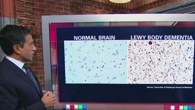 Robin Williams' Lewy Body Dementia
