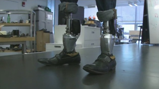 wbt dnt lake bionic limbs_00004311.jpg