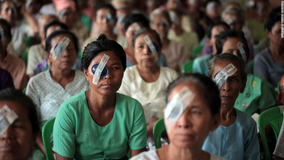 Women in the Myanmar Outreach Eye Clinic in Yangon wait for their eyes to be examined after cataract surgery in 2013.