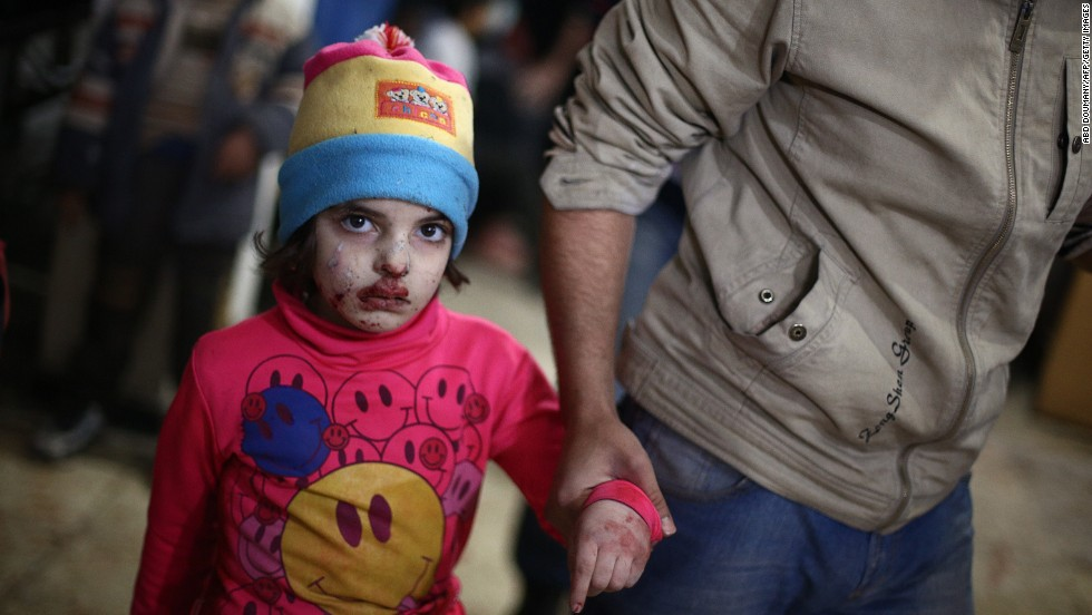 A wounded child walks at a makeshift hospital in the rebel-held town of Douma after being injured in a reported airstrike by government forces on Tuesday, December 23. Douma, located near Damascus, has been under government siege for more than a year, with residents facing dwindling food and medical supplies.The United Nations estimates nearly 200,000 people have been killed in Syria since an uprising in March 2011 spiraled into civil war.