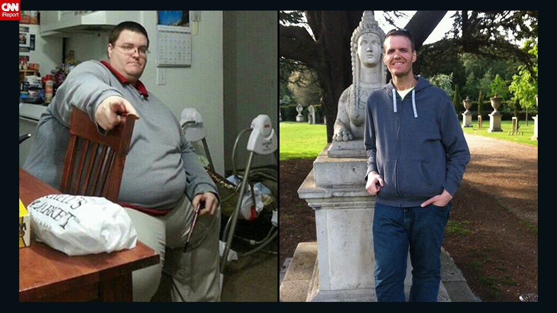 "<a href=""http://www.cnn.com/2014/04/28/health/irpt-weight-loss-brian-flemming/"">Brian Flemming</a> is currently at 235 pounds -- a total of 390 pounds lost -- and recently finished his first half-marathon. He still has about 30 pounds of excess skin, which he hopes to have removed someday."