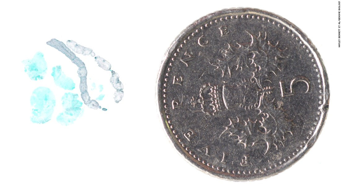 The worm, seen here in gray next to a five pence piece, measured only 1cm in length yet managed to wreak considerable damage on its path through the brain.